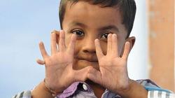 Cậu bé 4 tuổi có 25 ngón tay, chân
