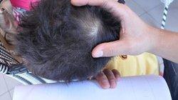 Đình chỉ cô giáo bị tố đánh bé 3 tuổi chấn động não