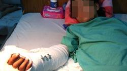 Bàn tay cô gái bị cướp chém đứt dần hồi phục