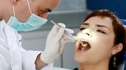 Khi nào nên đi lấy cao răng?