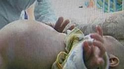 Kỳ lạ bé trai 2 tuổi mang thai… em ruột