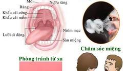 Ung thư miệng hình thành từ một vết loét