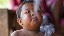 Cai xong thuốc, bé trai từng hút 40 điếu mỗi ngày lại... nghiện ăn