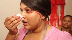 Kỳ lạ thiếu nữ chảy máu mỗi khi khóc và đổ mồ hôi