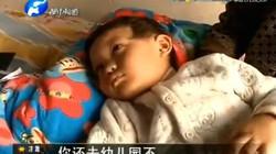 Không ngủ trưa, bé 3 tuổi bị cô giáo mầm non chọc kim vào người