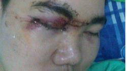 Nhân chứng kể về nghi vấn cảnh sát đánh mù mắt thanh niên