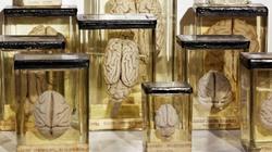 100 bộ não biến mất bí ẩn bất ngờ xuất hiện sau 30 năm