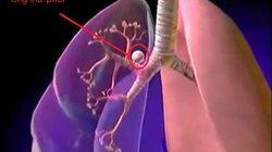 Hút thuốc lá có thể bị 8 bệnh ung thư