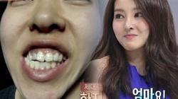 """Cô gái xấu xí xinh như mỹ nữ nhạc Hàn sau """"dao kéo"""""""