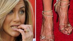 Những mỹ nhân đẹp nhất Hollywood sở hữu đôi chân kỳ dị