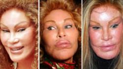 7 cuộc phẫu thuật thẩm mỹ đắt tiền nhất của sao Hollywood
