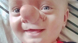 Cậu bé có mũi dài như nhân vật hoạt hình Pinocchio