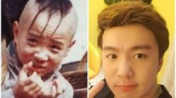 """29 tuổi, cuối cùng """"cậu bé Tam Mao"""" đã mọc tóc"""