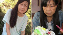 Cư dân mạng xót xa cô gái 21 tuổi có gương mặt lão hóa như cụ 80