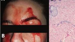 Hoảng sợ vì máu túa ra từ mặt suốt 3 năm mà không có vết thương nào