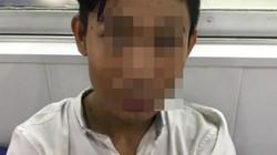 Thiếu niên sát hại nhân viên quán sườn nướng khai gì ở công an?