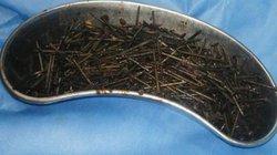 Dùng nam châm hút 600 đinh sắt ra khỏi bụng bệnh nhân