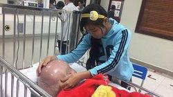 Bé trai có đầu căng tròn như quả bóng nước ở Thanh Hóa đã qua đời