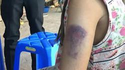 Điện Biên: Cô giáo đánh học sinh nhập viện vì viết chữ... không đẹp