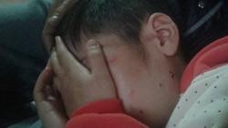 Vì sao mẹ ruột không biết con trai 10 tuổi bị bố và mẹ kế bạo hành?