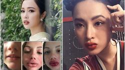 Mỹ nhân Việt môi biến dạng khi chạy theo chuẩn đẹp hot nhất 2017