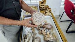 Viện bảo tàng não khiến ai cũng cảm thấy rùng mình khi ghé thăm