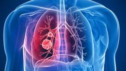 Được giải thoát sau 10 năm sống với khối u lớn trong ngực