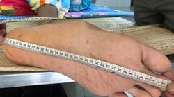 Kỷ lục không mong muốn của người đàn ông cao gần 2,5m ở Cà Mau