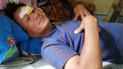 Xe bồn chở xăng lật, 6 người chết cháy ở Bình Phước: Tài xế xe ba gác nói gì?