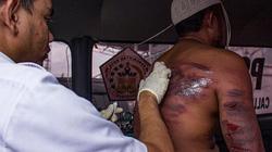 Indonesia: Bị phạt 100 roi trước công chúng, được 5 roi đã cầu xin rối rít