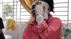 Nỗi khổ cô gái bị tạt axit khi chuẩn bị thủ tục đăng ký kết hôn