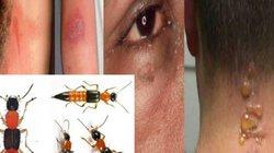 Độc tố trong kiến ba khoang mạnh gấp 12-15 lần nọc rắn hổ mang