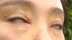 Cô gái chi bộn tiền cắt mí, hậu quả là mắt như cửa không cánh