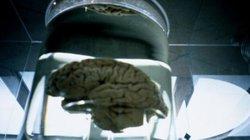 Đáng sợ khi não người được tạo ra trong phòng thí nghiệm cũng biết suy nghĩ?