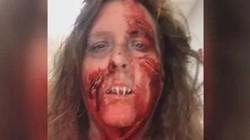 Đeo răng giả như xác sống đi chơi Halloween, người phụ nữ hoảng hồn vì không thể gỡ ra