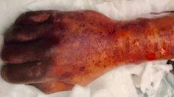 Để chó liếm cơ thể, người đàn ông tử vong chỉ sau 2 tuần