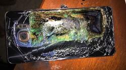 Điện thoại phát nổ khi vừa dùng vừa sạc, nam thanh niên nhận hậu quả đau lòng