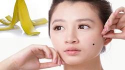 Cách tẩy nốt ruồi tại nhà với nguyên liệu tự nhiên an toàn hiệu quả