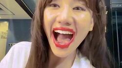 Hari Won thử nghiệm môi răng vỏ sò kỳ dị và cái kết đắng