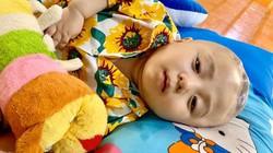 Xúc động cậu bé Phạm Đức Lộc chống chọi căn bệnh não úng thủy trước khi qua đời