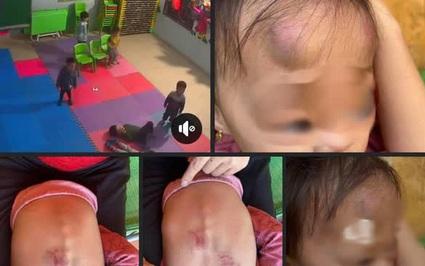 """Vụ bé gái bị đánh ở Bắc Giang: UBND xã ra quyết định """"nóng"""" với Trường mầm non Vân Vũ"""