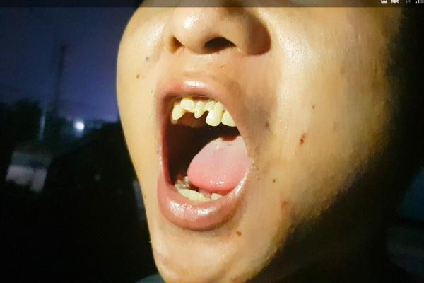 Từ quê nhà Quảng Ngãi: Nỗi căm phẫn của người thân cậu bé phụ quán bánh xèo bị bạo hành dã man