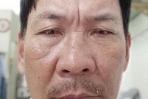 Bé gái 12 tuổi ở Phú Quốc bị gã bán đồ chơi hiếp dâm