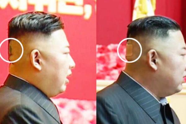 Kim Jong-un xuất hiện với vết bầm lớn sau đầu, khiến giới tình báo bối rối