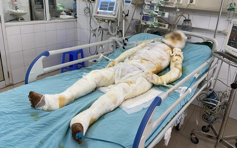 Lai Châu: Tương lai mờ mịt của chàng trai dân tộc Mảng bị bỏng nặng khi đi đốt nương